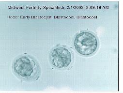 2nd Fresh IVF 5 day transfer 2/1/08