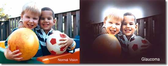 vision con glaucoma y vision normal