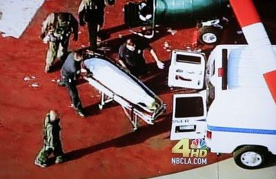 michael jackson dead body face
