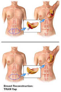 My Fabulous Boobies| Diagram of TRAM Flap procedure for breast cancer patients