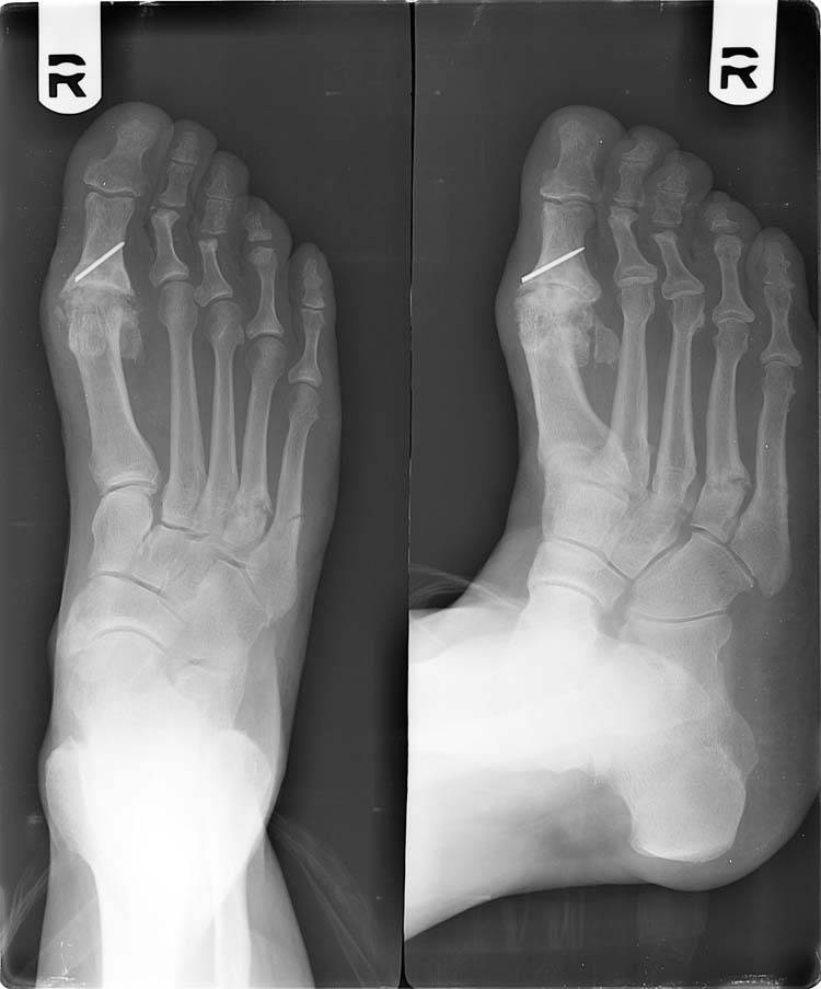Displaced fracture- bone ends are out of normal alignment-4.bp.blogspot.com