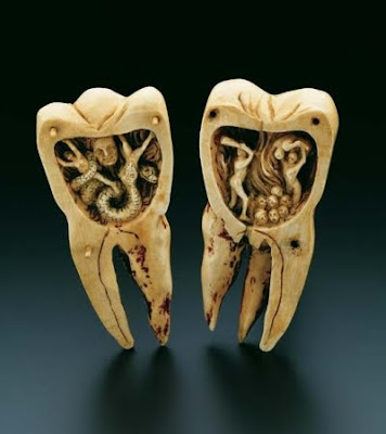 ... for what causes tooth decay was the tooth worm first noted by