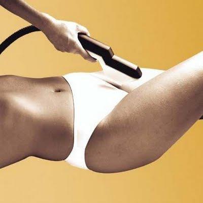 depilacion mujer laser