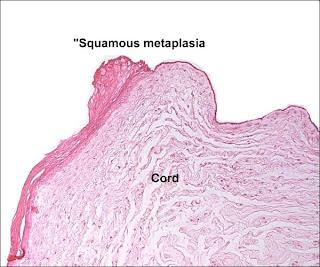 Umbilical Cord Histology Umbilical Cord Histolo...