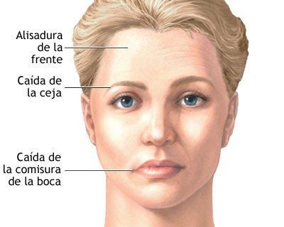 El impacto del puntero láser a los ojos