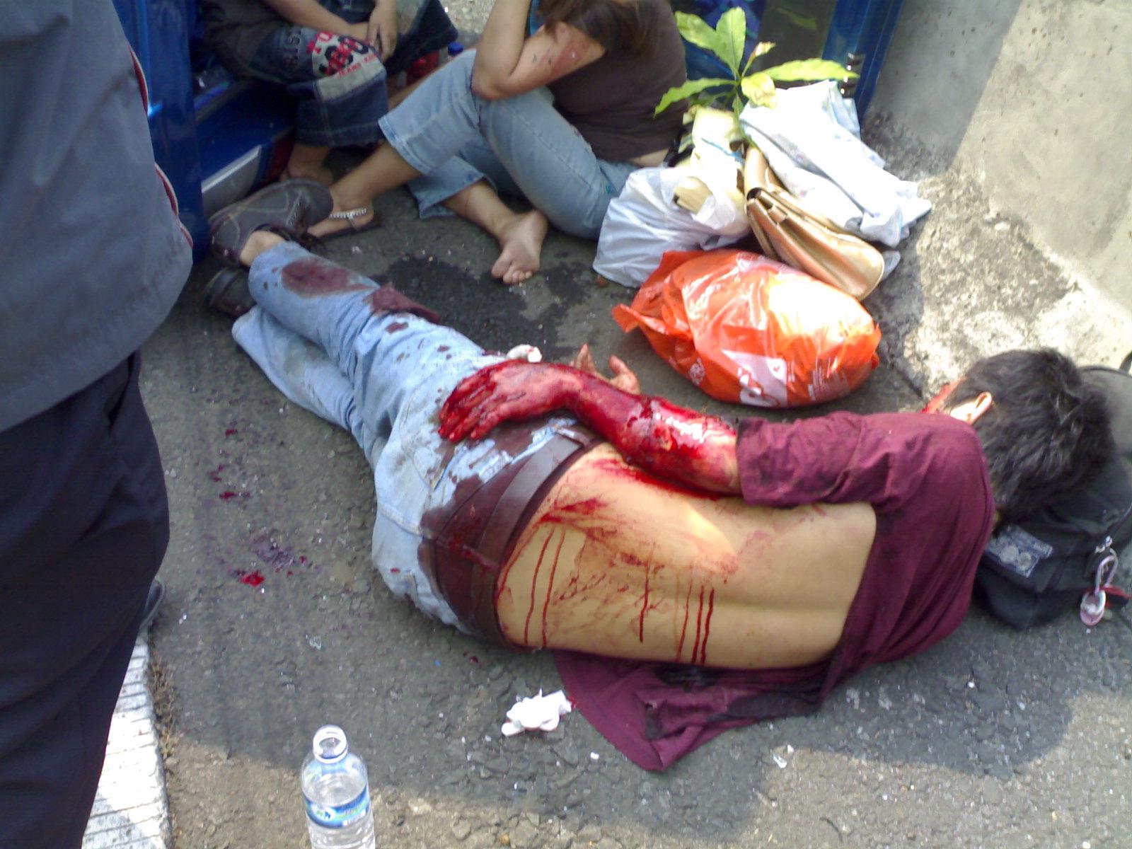 ... kecelakaan lalu lintas) - Foto diambil dari: http://tissuebasah.files
