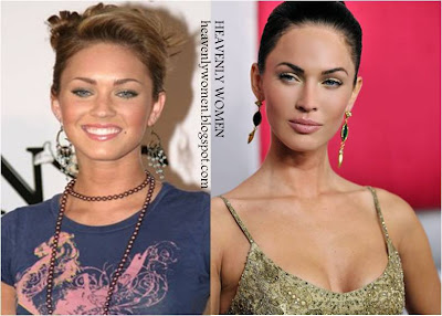 Megan Fox Before and After Plastic Surgery