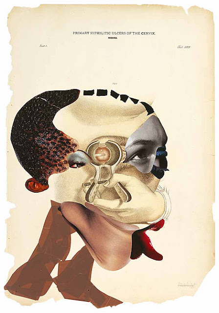 Artist: Wangechi Mutu, Primary Syphilitic Ulcers of the Cervix
