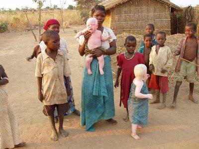 albinos de padres