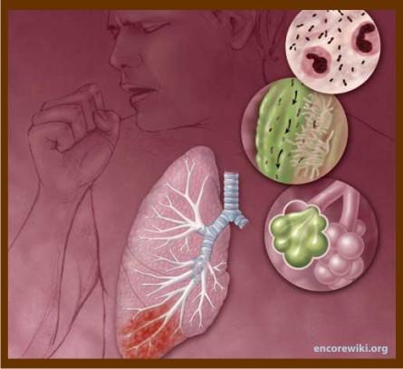 Un Medico En Casa.: INFECCION RESPIRATORIA AGUDA (