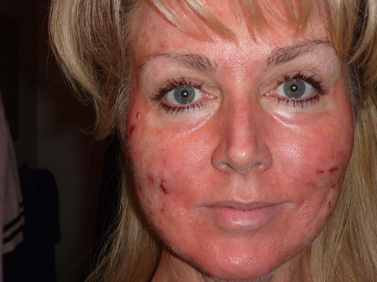 homéopathie acné corps 59