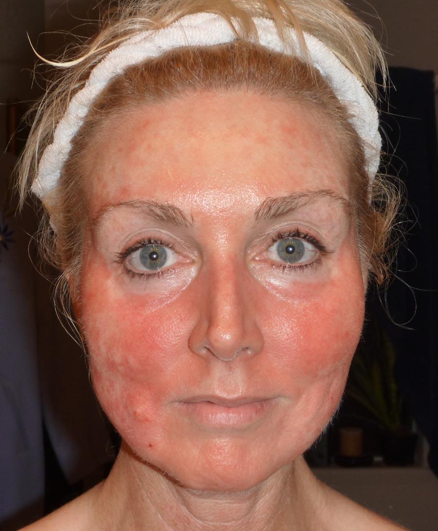 back acne steroids