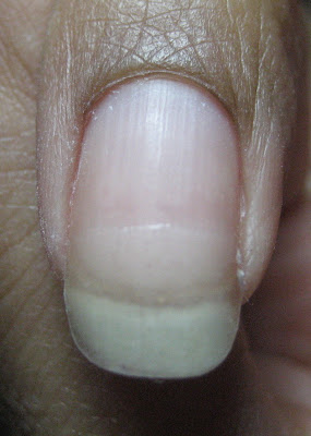 They Ve Helped Me Finally Be Able To Grow Out Some Of My Worst Problem Nails And I Got The Nail Pics Prove It Here