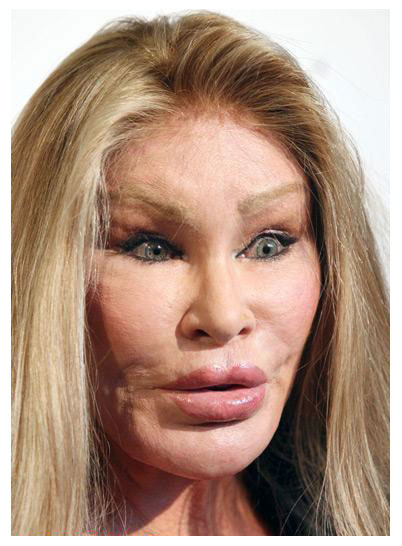 Penectomy Before And After http://plasticsurgerybeforeandafter.blogspot.com/2010/05/cat-woman-plastic-surgery.html