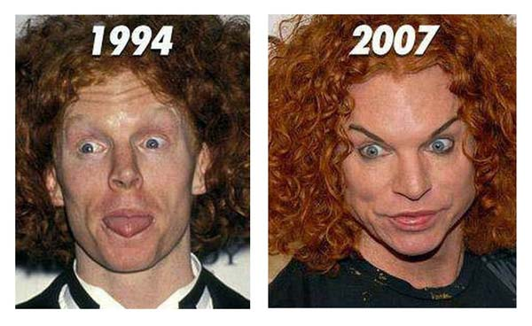 Carrot Top before and after plastic surgery? (image hosted by plasticsurgerybeforeandafter.blogspot.com)