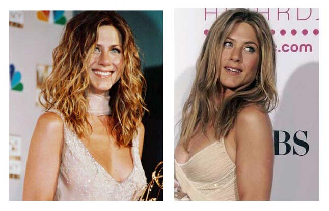 jennifer aniston surgery before after. Jennifer Aniston Breast Implants. Another rumors about Jennifer is her