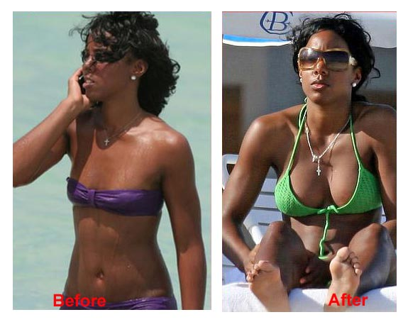 Kelly Rowland Implants Before and After