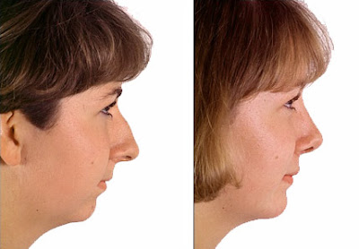 Chin Augmentation Before After