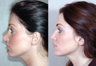 Plastic Surgery Before And After: Nose Jobs Before And After