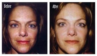 Before & After; several micro treatments combined with appropriate home-care products.
