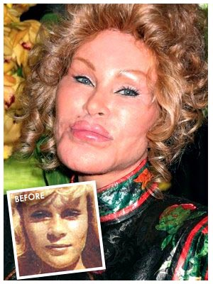 lady gaga nose job photos. Nose Jobs Gone Wrong