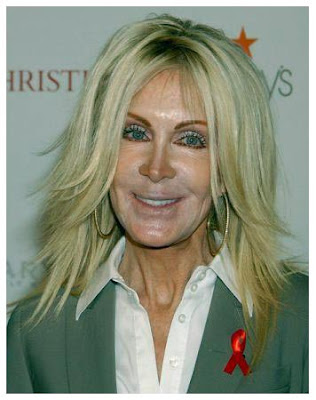 Joan Van Ark Bad Nose Job