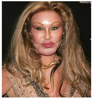 Jocelyn  Wildenstein Bad Rhinoplasty