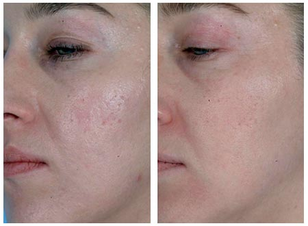 does steroid cream reduce scars