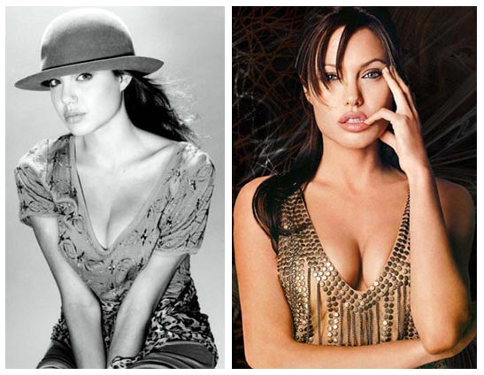 Angelina Jolie Before And After. Through plastic surgery, she has filled out