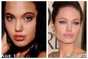 Angelina Jolie Before After