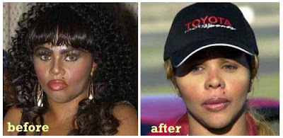 Lil Kim Before After