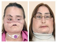 Connie Culp Before And After