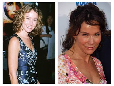 Jennifer Grey Rhinoplasty