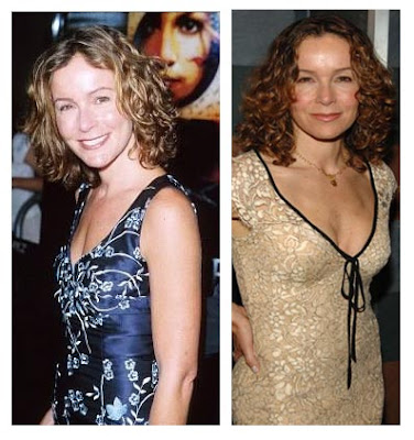 Jennifer Grey Before And After Nose