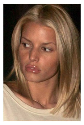Lip Injections Gone Wrong