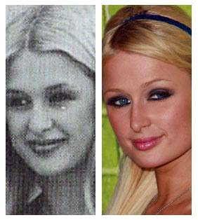 Ryan Reynolds Nose  on Paris Hilton Plastic Surgery Nose Job   Image Hosted By Http