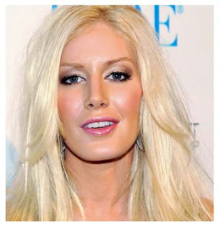 Heidi Montag Before After Plastic Surgery