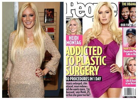 before and after of heidi montag. Heidi Montag Plastic Surgery