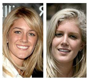 Heidi Montag Plastic Surgery Before And After Pictures