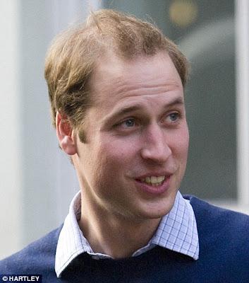 is prince william balding. prince william balding 2010.