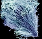 protozoa99