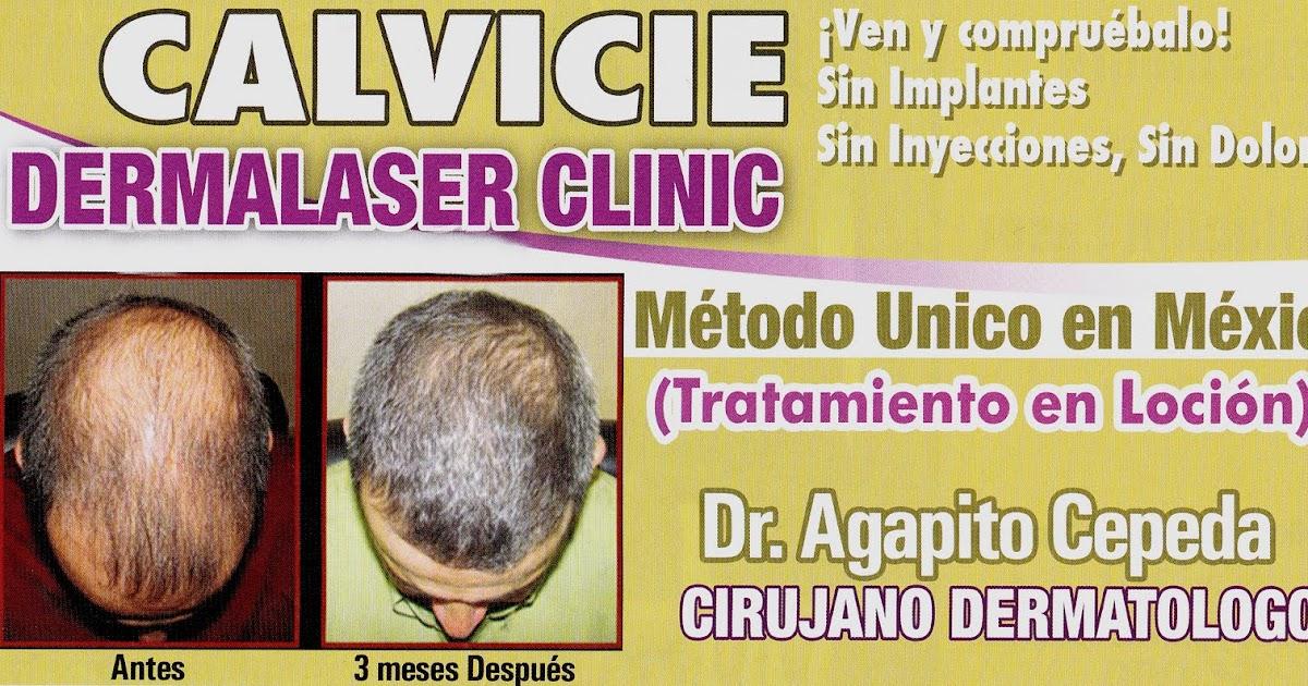 Dermatologist And Skin Surgery In Reynosa Tratamiento