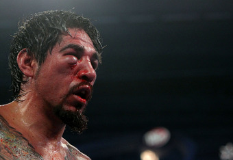 Margarito Face After Pacquiao Fight Pictures