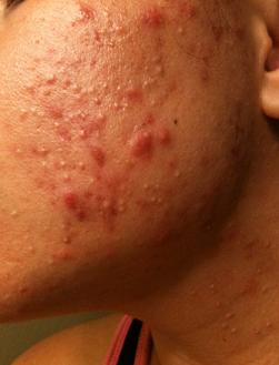 Cost of accutane