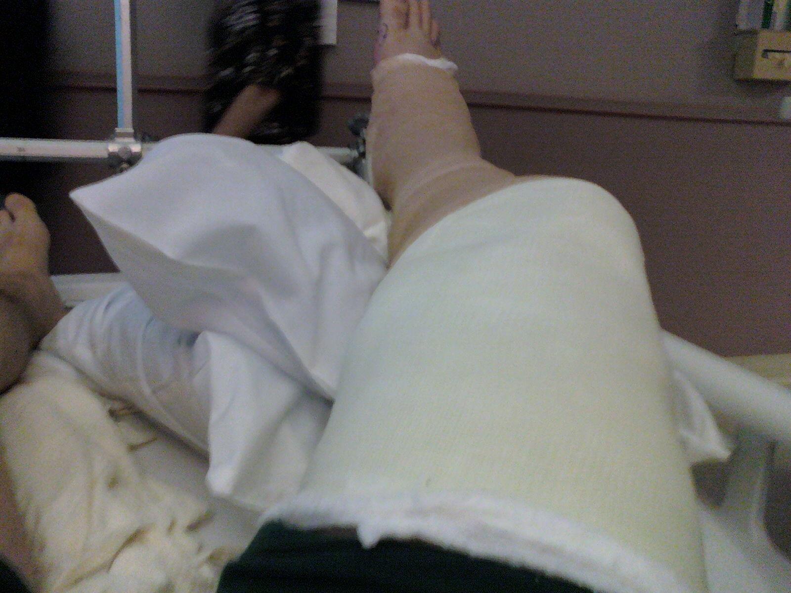 Weeks After My Dog Broke His Leg