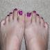 zebra toenails!