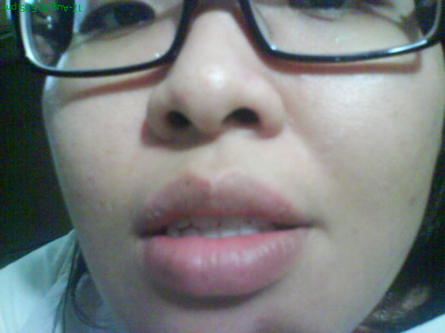 how to avoid herpes on lips