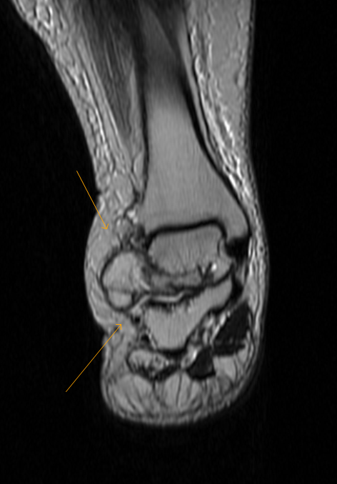 On Radiology Lipoma Arborescens Of Ankle Mri Whats That
