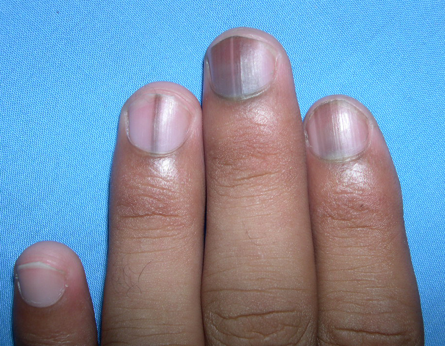 Melanonychia Descriped As Brown Or Black Linear Pigmentation Of The Nail Unit Commonly Presents Pigmented Band Arranged Lengthwise Along