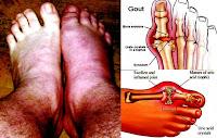 penyebab dan gejala asam urat Gejala Asam Urat